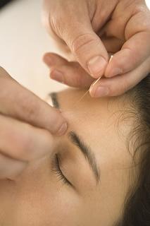 鍼灸治療についてのイメージ